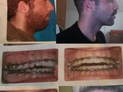 Do you think jaw surgery was the correct treatment for my case? : Dentistry