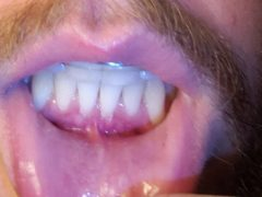Question about pain around gum surgery site two months post-op : Dentistry
