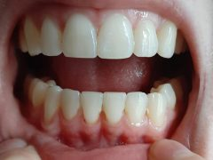 Receding gums? : Dentistry